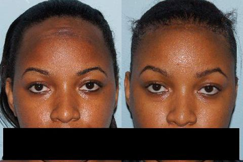 Hair Line Lowering before and after photos in San Francisco, CA, Patient 14258