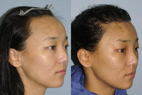 Hair Line Lowering before and after photos in San Francisco, CA, Patient 14266