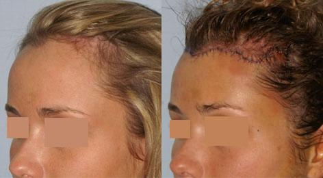 Hair Line Lowering before and after photos in San Francisco, CA, Patient 14275