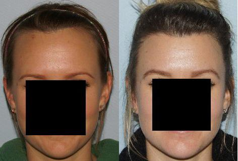Hair Line Lowering before and after photos in San Francisco, CA, Patient 14318