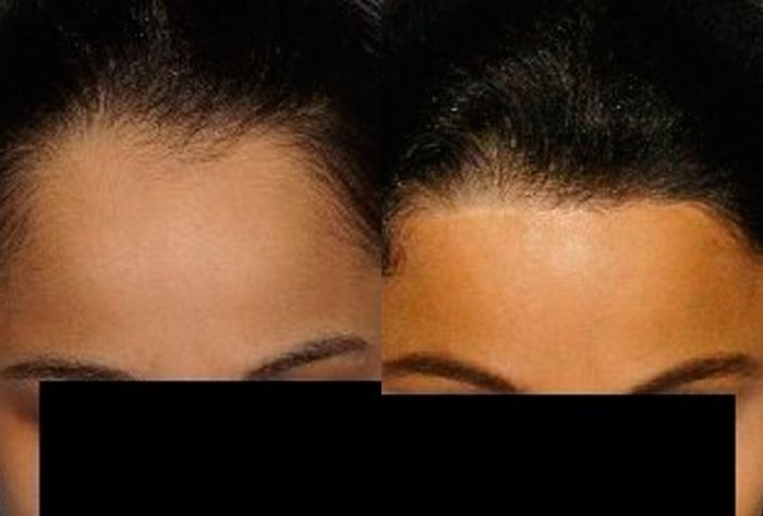 Hair Line Lowering before and after photos in San Francisco, CA, Patient 14336