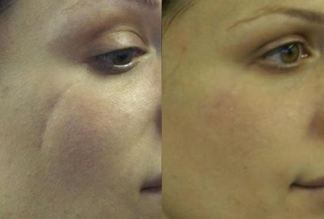 Scar Revision before and after photos in San Francisco, CA, Patient 14349