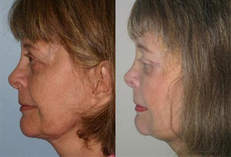 Facelift before and after photos in San Francisco, CA, Patient 14391