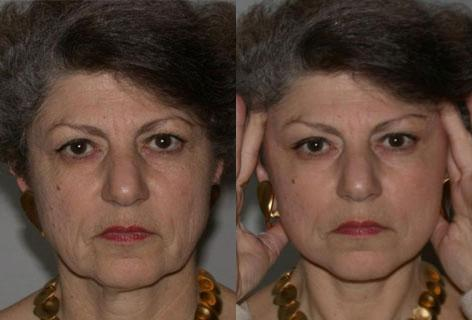 Facelift before and after photos in San Francisco, CA, Patient 14396