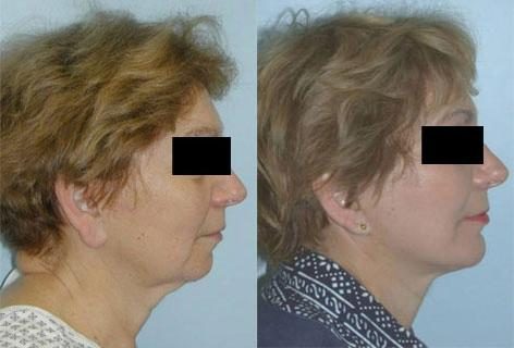 Facelift before and after photos in San Francisco, CA, Patient 14399
