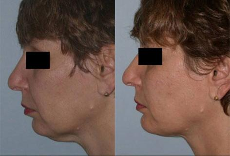 Facelift before and after photos in San Francisco, CA, Patient 14406