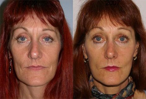 Facelift before and after photos in San Francisco, CA, Patient 14415