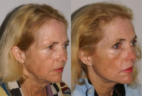 Facelift before and after photos in San Francisco, CA, Patient 14427