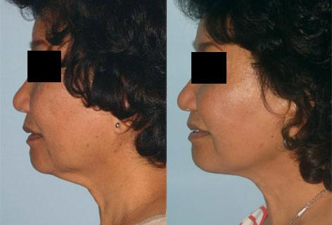 Facelift before and after photos in San Francisco, CA, Patient 14434
