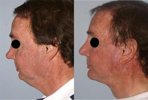 Facelift before and after photos in San Francisco, CA, Patient 14441