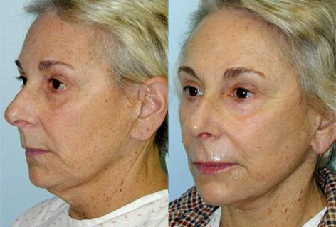 Facelift before and after photos in San Francisco, CA, Patient 14452