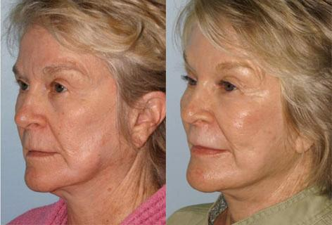 Facelift before and after photos in San Francisco, CA, Patient 14459
