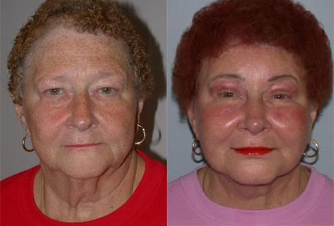 Facelift before and after photos in San Francisco, CA, Patient 14466