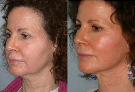 Facelift before and after photos in San Francisco, CA, Patient 14471