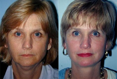 Facelift before and after photos in San Francisco, CA, Patient 14478