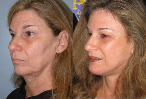 Facelift before and after photos in San Francisco, CA, Patient 14483