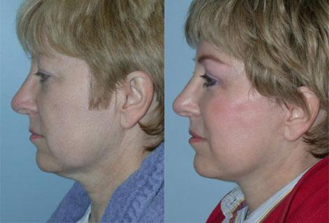 Facelift before and after photos in San Francisco, CA, Patient 14490