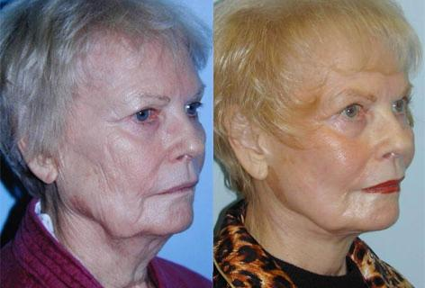 Facelift before and after photos in San Francisco, CA, Patient 14497