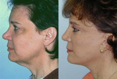 Facelift before and after photos in San Francisco, CA, Patient 14507