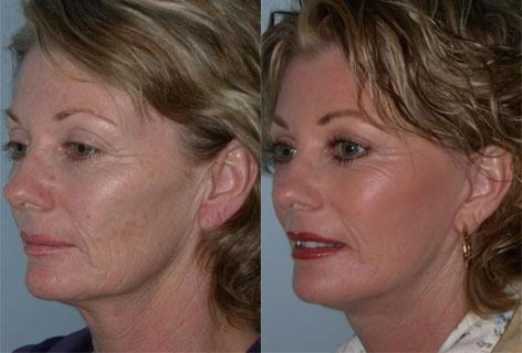 Facelift before and after photos in San Francisco, CA, Patient 14512