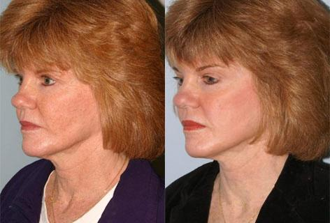 Facelift before and after photos in San Francisco, CA, Patient 14519