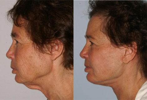 Facelift before and after photos in San Francisco, CA, Patient 14524