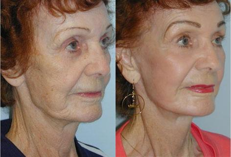 Facelift before and after photos in San Francisco, CA, Patient 14531