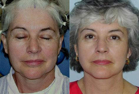 Facelift before and after photos in San Francisco, CA, Patient 14536