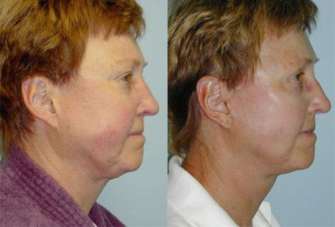 Facelift before and after photos in San Francisco, CA, Patient 14543