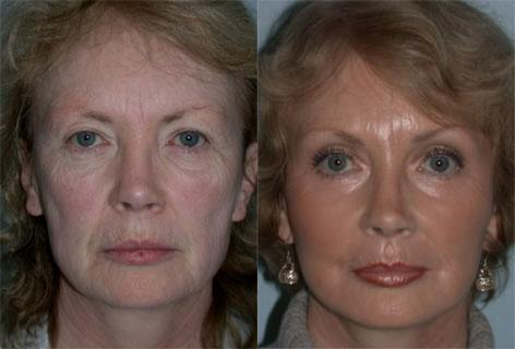 Facelift before and after photos in San Francisco, CA, Patient 14548