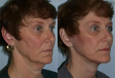 Facelift before and after photos in San Francisco, CA, Patient 14557