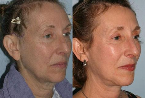 Facelift before and after photos in San Francisco, CA, Patient 14566