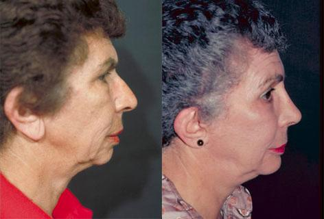 Facelift before and after photos in San Francisco, CA, Patient 14577