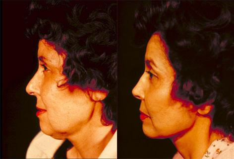 Facelift before and after photos in San Francisco, CA, Patient 14580
