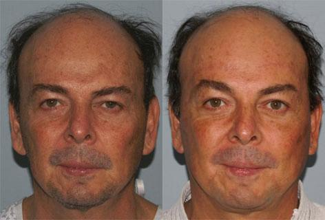 Facelift before and after photos in San Francisco, CA, Patient 14583