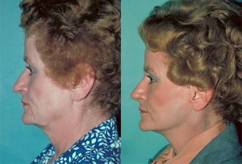 Facelift before and after photos in San Francisco, CA, Patient 14588