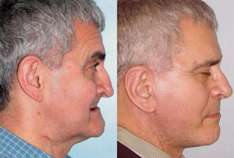 Facelift before and after photos in San Francisco, CA, Patient 14591
