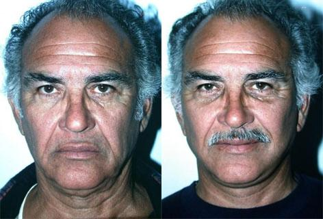 Facelift before and after photos in San Francisco, CA, Patient 14598