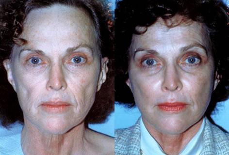 Facelift before and after photos in San Francisco, CA, Patient 14610