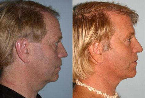 Facelift before and after photos in San Francisco, CA, Patient 14615