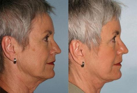 Facelift before and after photos in San Francisco, CA, Patient 14626