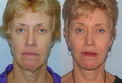 Facelift before and after photos in San Francisco, CA, Patient 14633