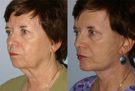 Facelift before and after photos in San Francisco, CA, Patient 14640