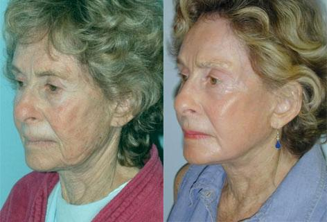 Facelift before and after photos in San Francisco, CA, Patient 14649