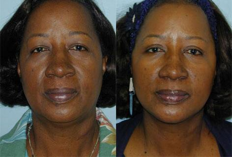 Facelift before and after photos in San Francisco, CA, Patient 14654