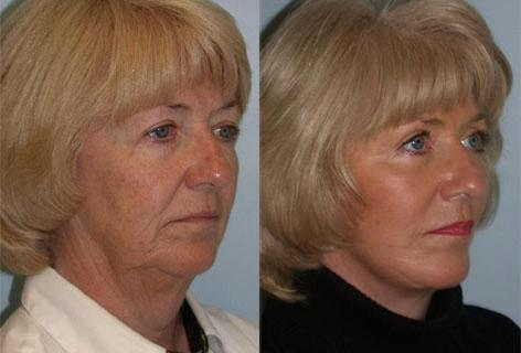 Facelift before and after photos in San Francisco, CA, Patient 14659
