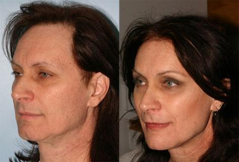 Facelift before and after photos in San Francisco, CA, Patient 14668