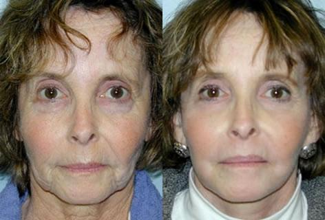 Facelift before and after photos in San Francisco, CA, Patient 14671