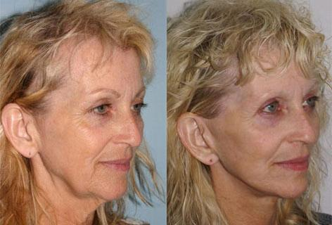 Facelift before and after photos in San Francisco, CA, Patient 14678