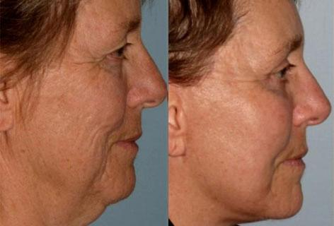 Facelift before and after photos in San Francisco, CA, Patient 14689